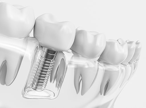 Möglichkeiten der Implantologie