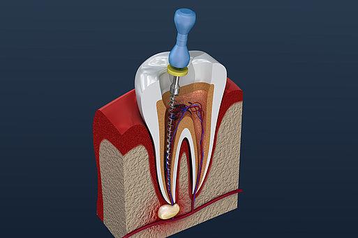 Schematische Darstellung Endontologie